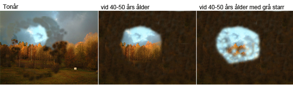 Bilderna visar hur synfältet gradvis krymper vid retinitis pigmentosa. I tonåren är synen skarp i mitten och lite suddig i ytterkanterna. Efterhand minskar synfältet. Grå starr, som är vanligt från 50-årsåldern, förvärrar situationen ytterligare.